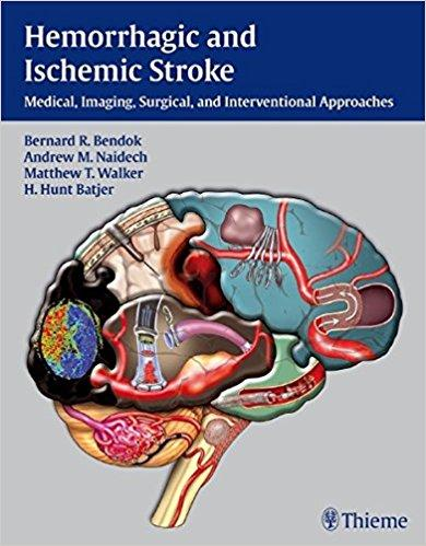 Hemorrhagic and Ischemic Stroke Medical  Imaging  Surgical and Interventional Approaches - نورولوژی